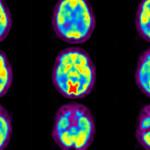 maladie d'Alzheimer et aliments
