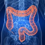 syndrome intestin irritable
